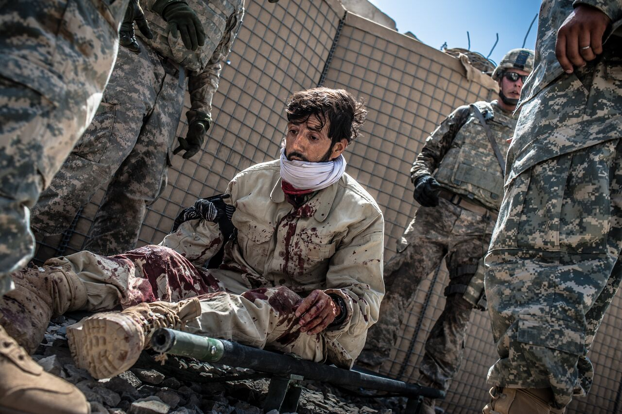 An Afghan security guard is wounded after an attack on his convoy near Kandahar's ancient Howz-e Madad bazaar in Zhari District in Kandahar Province. He was eventually sent to a local hospital. Photo by Ben Brody/The GroundTruth Project