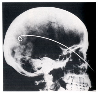 x-ray of skull with brain hook