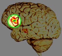 brain (adult)