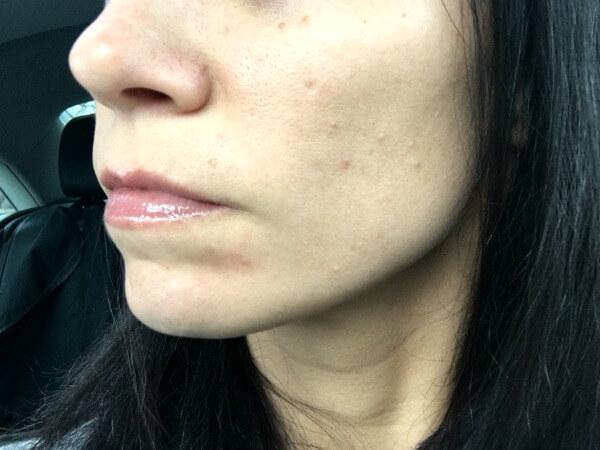 Whole30 Skin