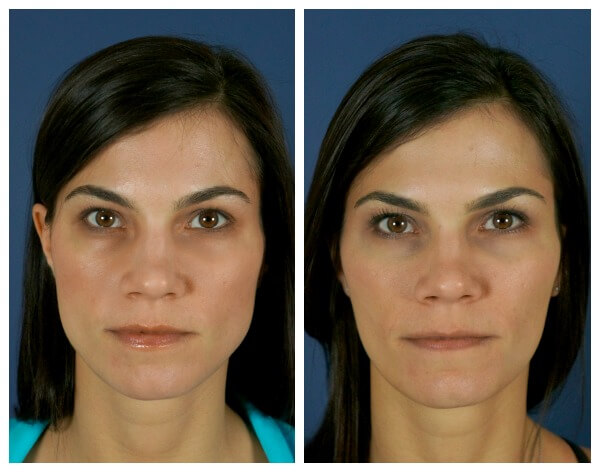 Botox for jaw clenching at Carolina Facial Plastics