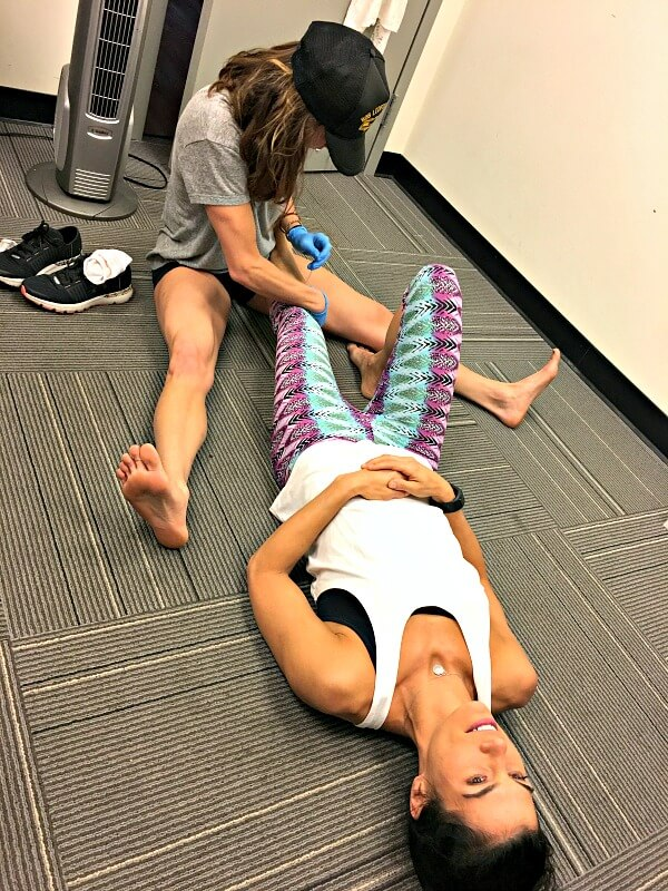 Dry needling calf muscles