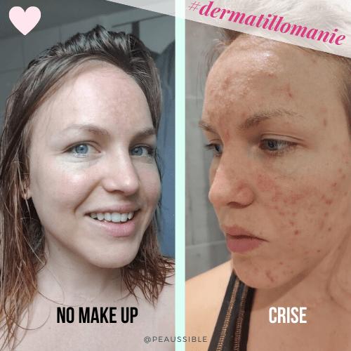 Ma peau après 15 années de dermatillomanie