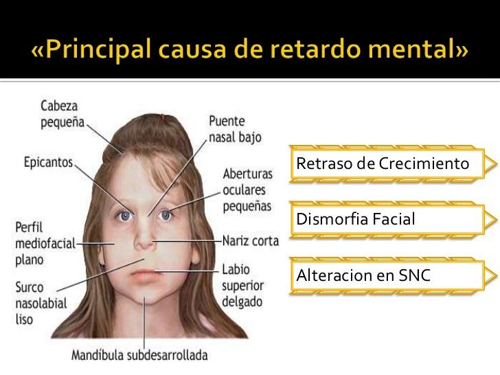 sindrome-de-alcoholismo-fetalsaf-2-728