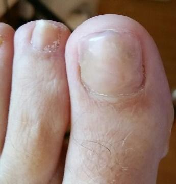 De nagel na de reparatie.