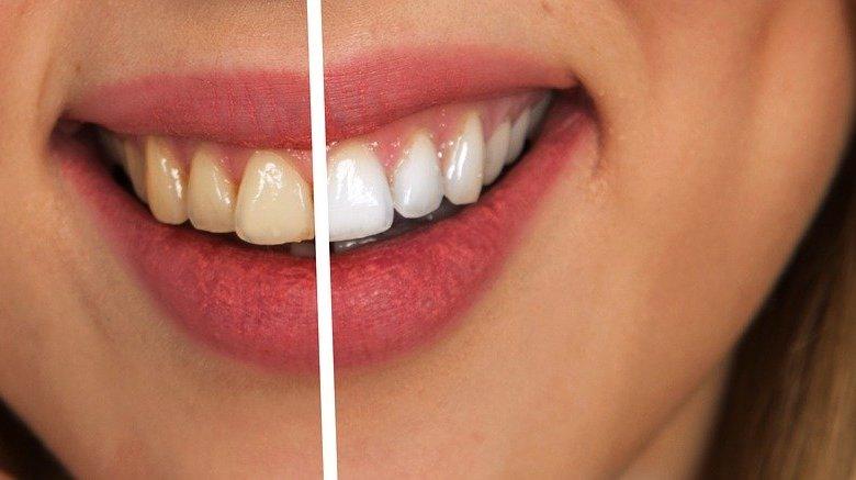 tratament-albire-dinti