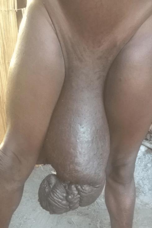 abnormal genitalia