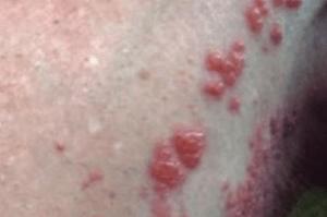 penile-bumps-causes