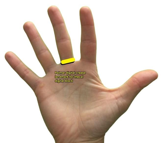 hand_for_digital_block