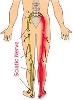 Sciatica and Acupuncture
