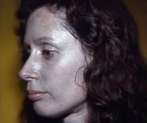 Argirija – bolest vezivanja čestica srebra za pigment