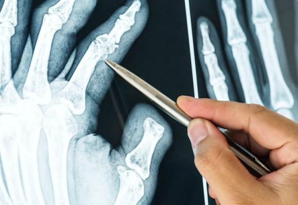 Uticaj glukozamina i hondroitina na osteoartritis