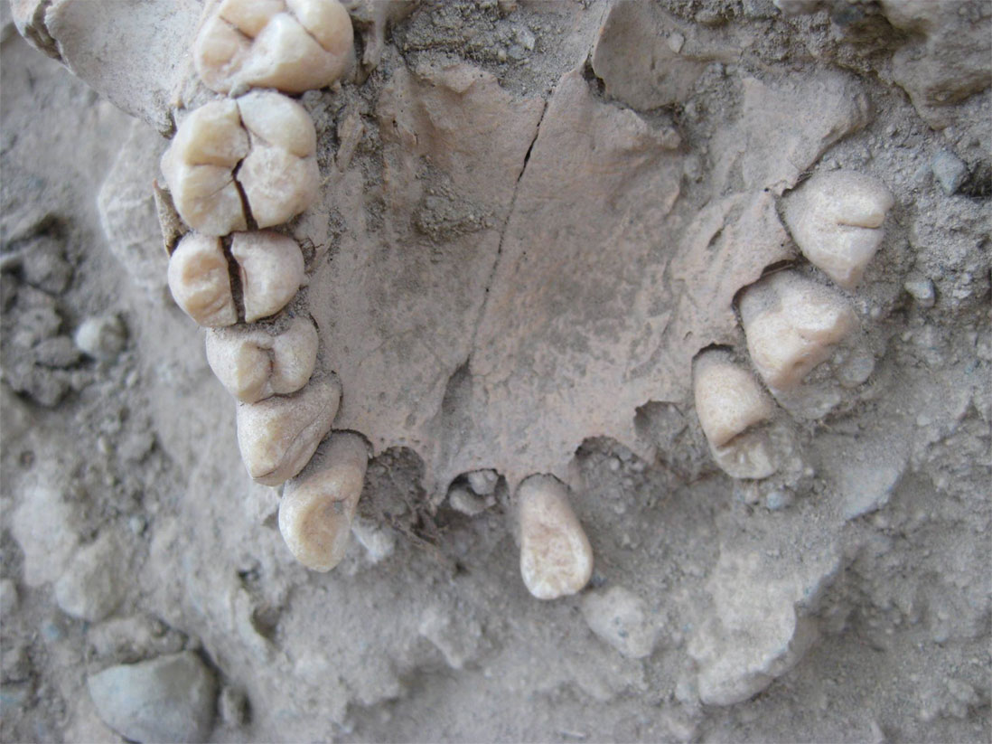 Well preserved Iron Age teeth, source: Armen Martirosian