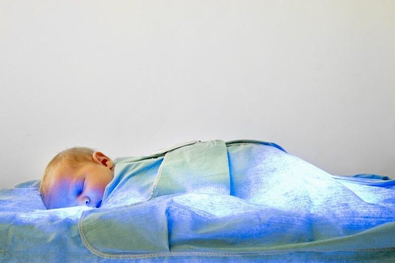 La piel del bebé está amarilla: ICTERICIA NEONATAL