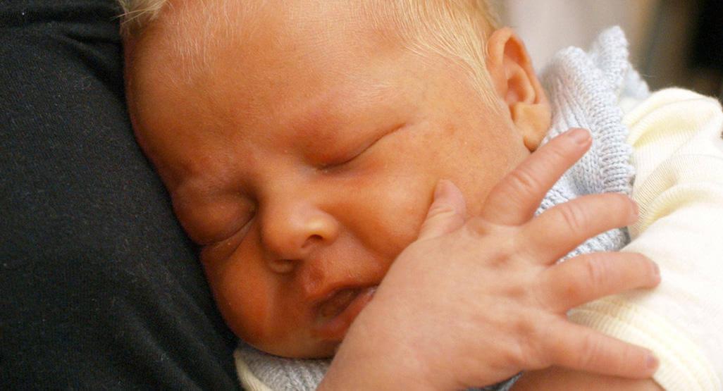 causas de la piel amarilla en bebés