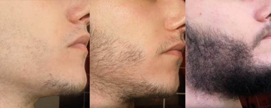 Bartwuchs Anregen Ratgeber Zur Förderung Eines Stärkeren