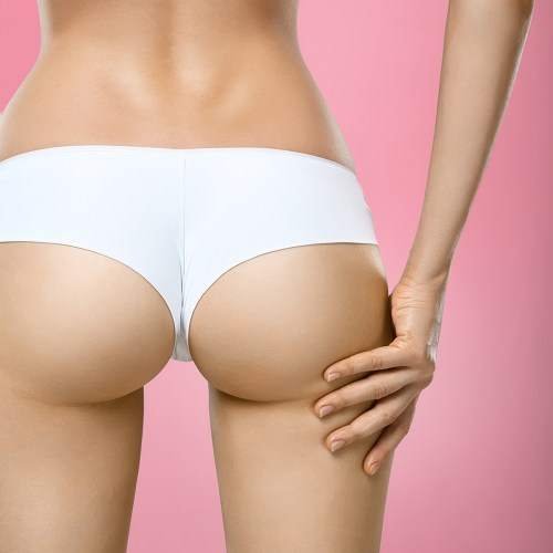 Brazilian Butt Lift in DFW Area | Perfections Body Sculpt