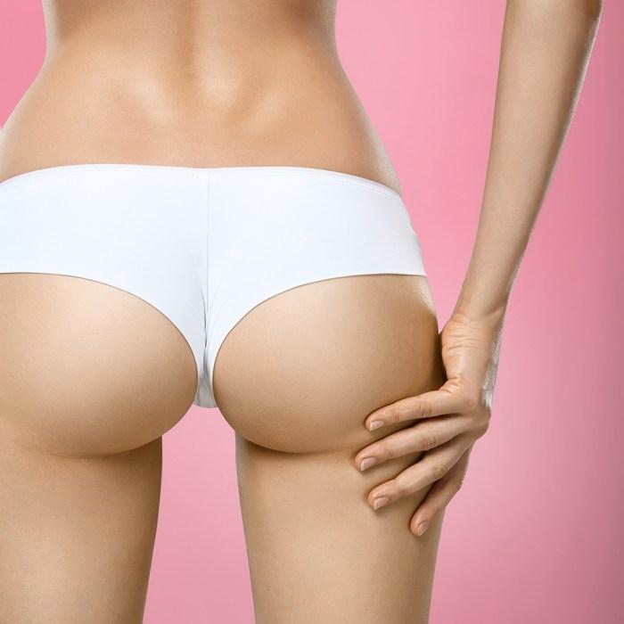 Brazilian Butt Lift in DFW Area | Perfections Body Sculpt