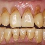高松市の歯周病治療|歯の根っこが茶色くなってきたのは歯周病でしょうか?