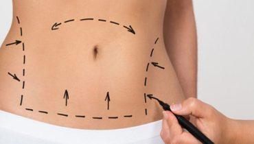 Abdominoplastia: a cirurgia plástica da barriga