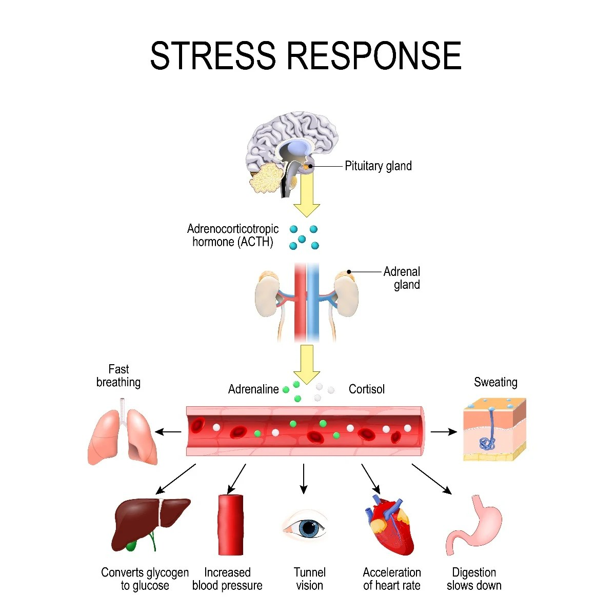 What Is Stress Causes Symptoms Amp How It Affects Your