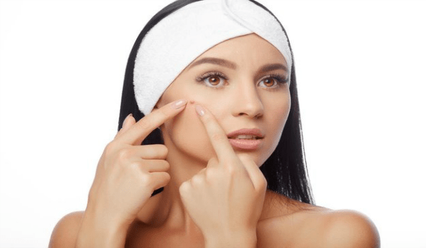 Get rid of Blackheads On Cheeks
