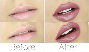 how to plump lips
