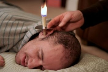 ear-candling