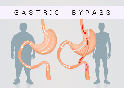 4 Reasons You May Regain Weight After Gastric Bypass Surgery