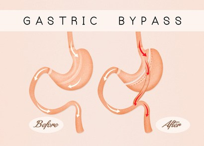 Answering 5 Frequently Asked Questions about Gastric Bypass Surgery