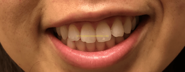 After-1024x396 Teeth Whitening Review LIFE