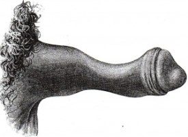 Peyronies pictures or in this case a Peyronie's disease drawing of bottleneck deformity caused by a ring of Peyronie's plaque material at mid-shaft