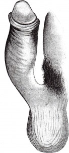 Peyronies pictures are here a Peyronie's disease drawing of an upward curved penis caused by Peyronie's plaque at upper surface close to pelvis