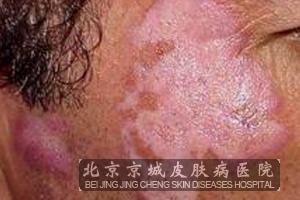 盤狀紅斑狼瘡會產生哪些癥狀_紅斑狼瘡_北京京城皮膚病醫院(北京醫保定點機構)