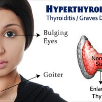Hyperthyroidism - homeopathic treatment by Dr. Tsan