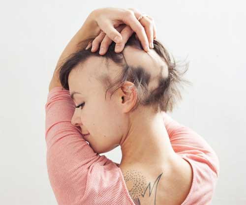 Alopecia / Boldness