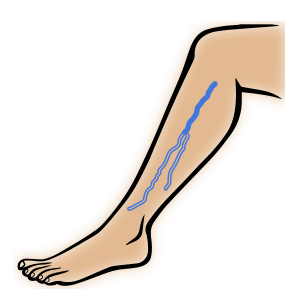 thrombose venenthrombose im bein