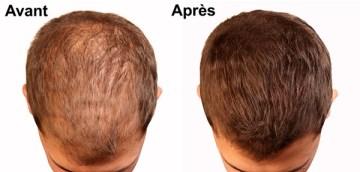 Le traitement de la chute des cheveux