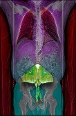 Abstract – CT scan of torso with image of a large moth in the belly area