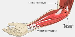 Elbow Pain Hand Physiotherapy