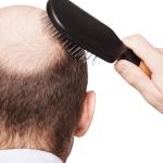 أسباب تساقط الشعر عند الشباب والكبار