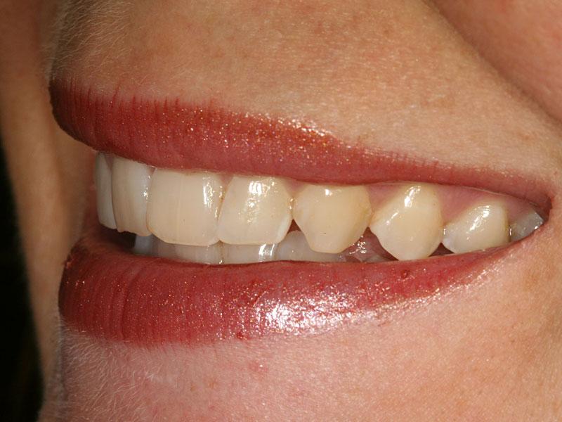 dental_shots_15