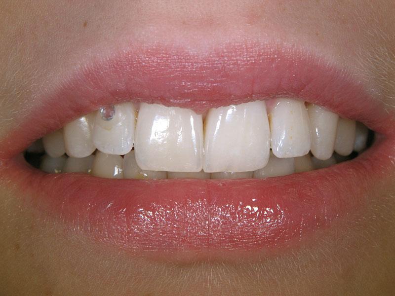 dental_shots_4