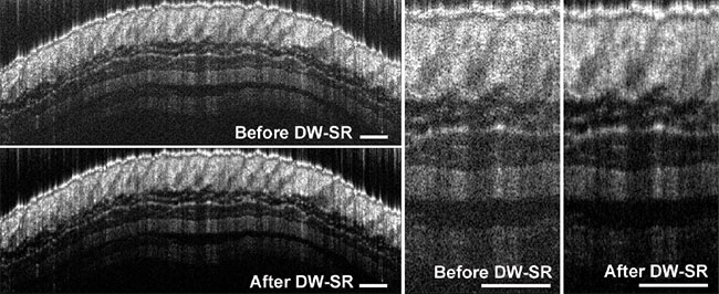 Representative images of healthy mouse skin before and after dual window speckle reduction (DW-SR)