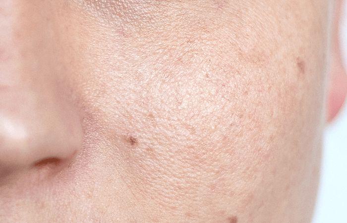 Before skin smoothing