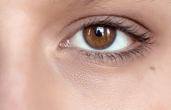 Remove Eye Circles Before