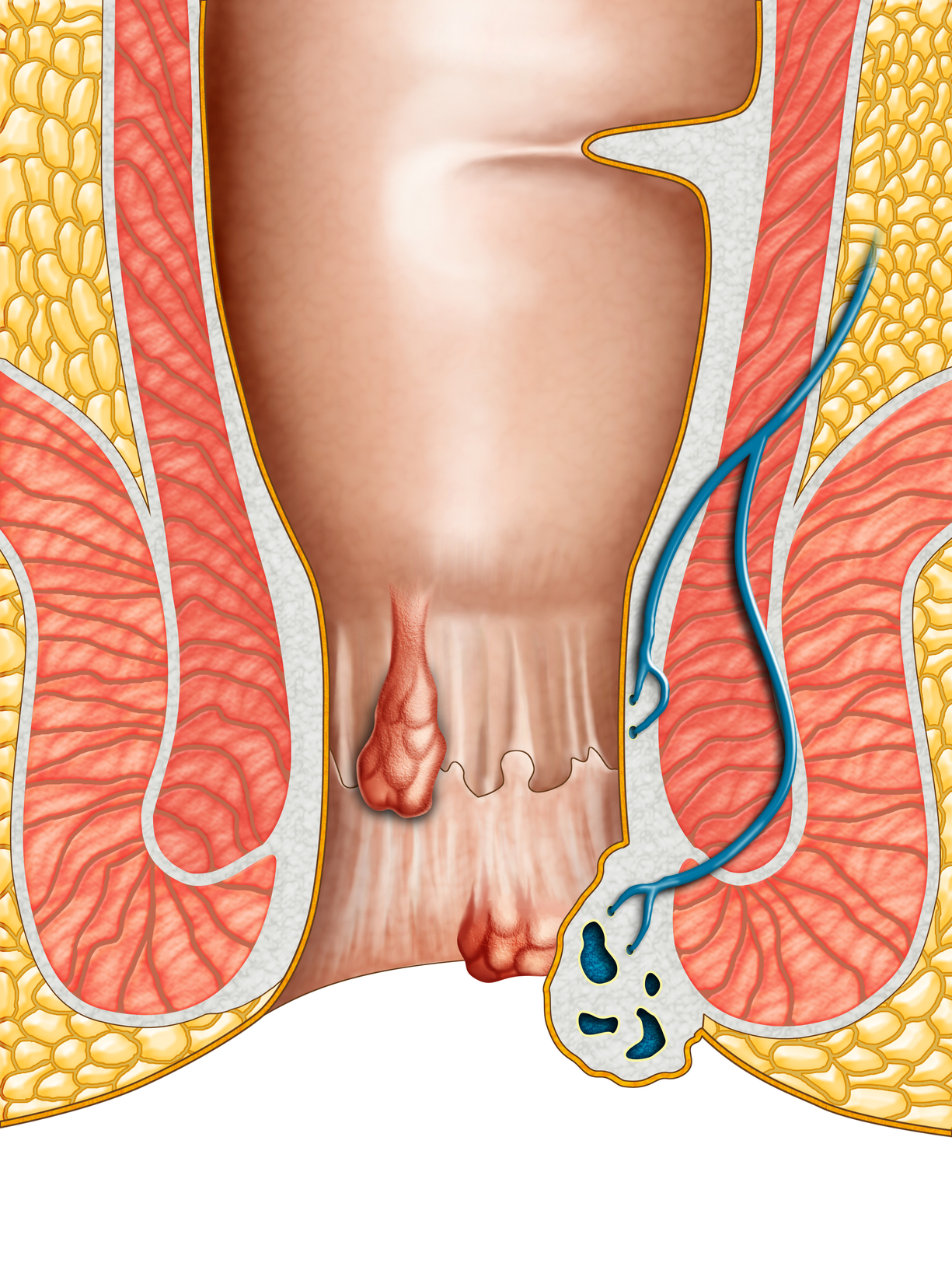 hernias on the outside of anal of a male