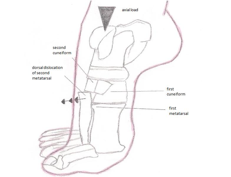 Image result for lisfranc ligament