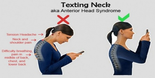 Image result for text neck image""