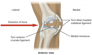 Medial Collateral Ligament of the Knee  Physiopedia